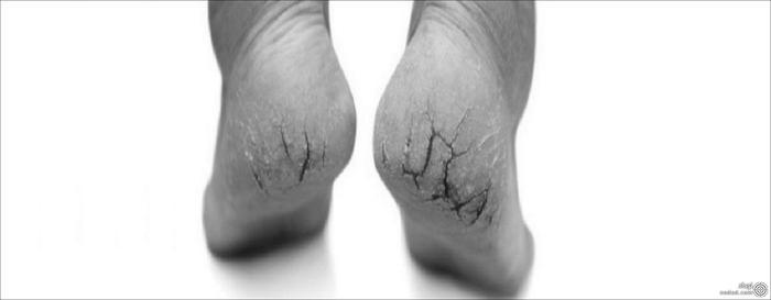 مضرات جوش شیرین برای پوست پا
